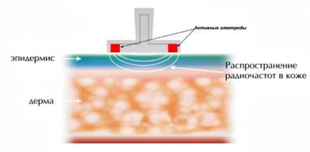 RF-терапия (термолифтинг и термолиполиз)
