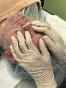18 июня состоялся семинар «Жирная и проблемная кожа. Энзимная чистка»
